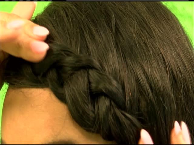 Traction Alopecia_25604674-159532