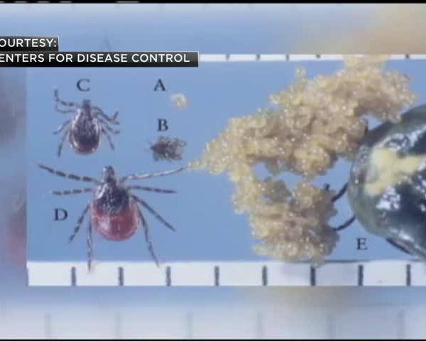 Lyme Disease_87188561
