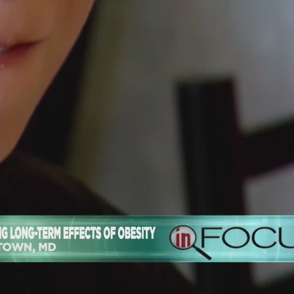 In_Focus__consequences_of_obesity_0_20180926193347