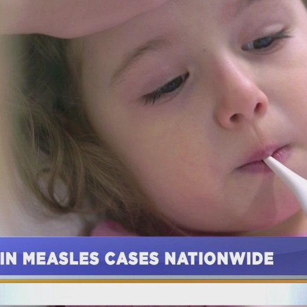 Rise_of_measles_cases__Part_1__0_20190522135823